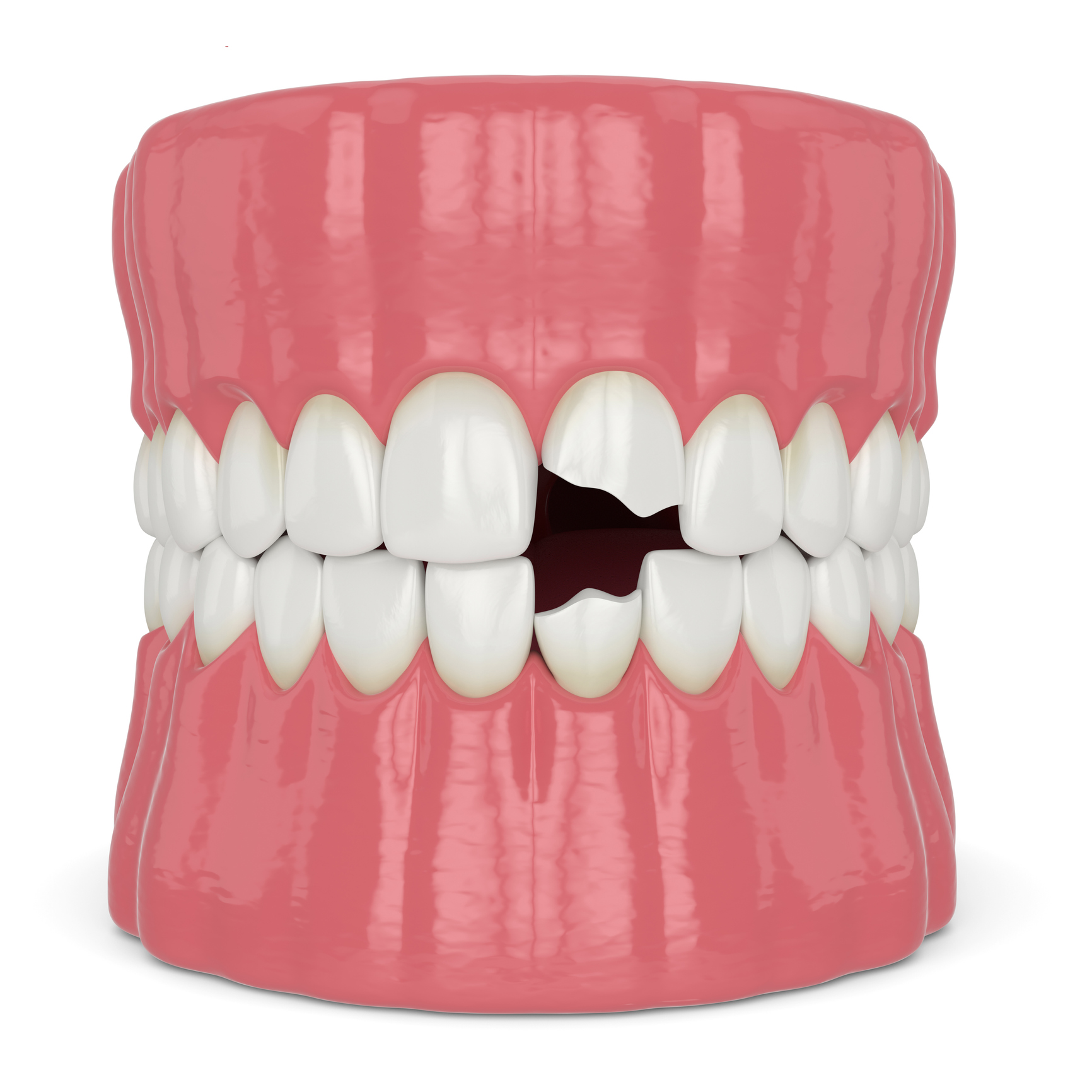 3d render of jaw with broken incisors teeth
