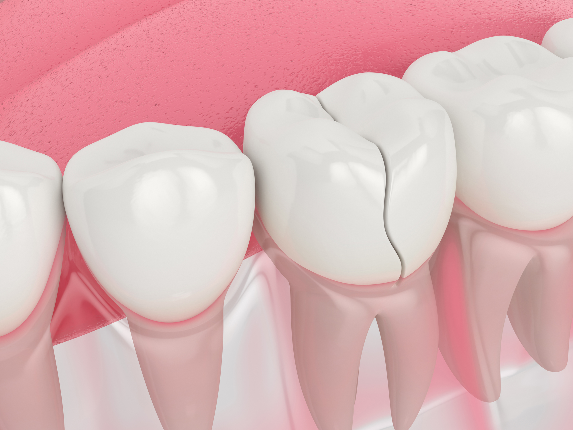 3d render of jaw with cracked tooth