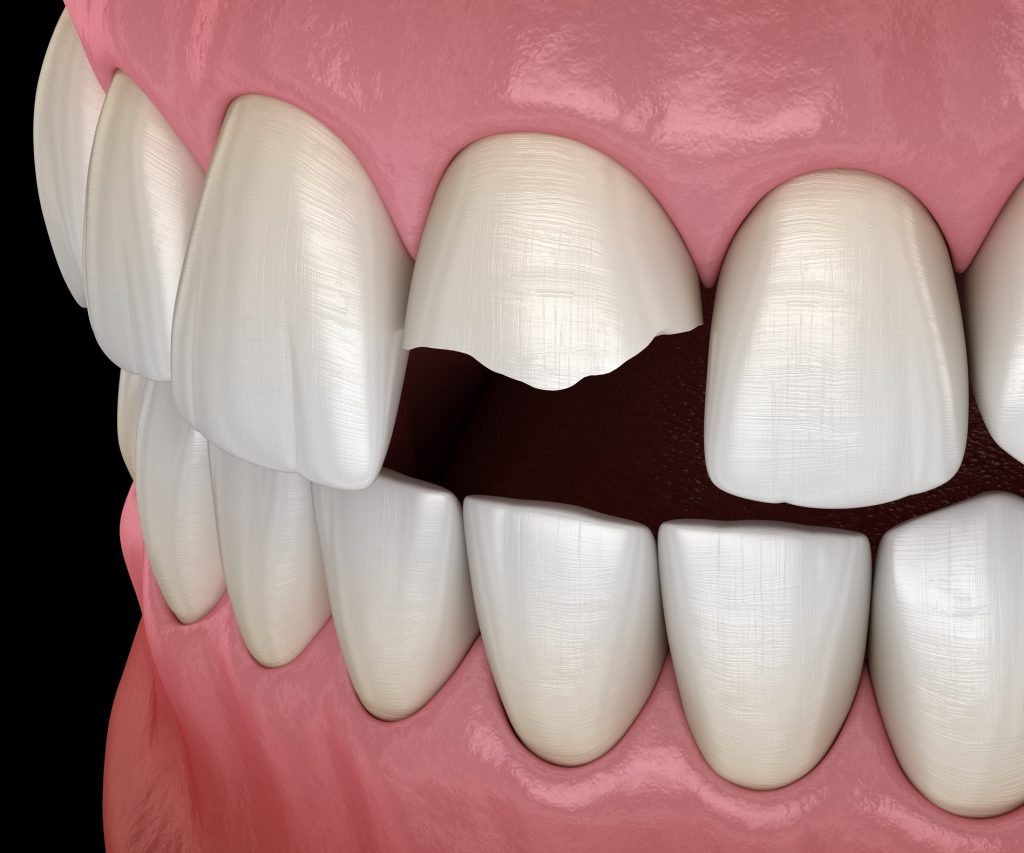 Broken central incisor tooth. Medically accurate 3D illustration of human teeth and dentures concept